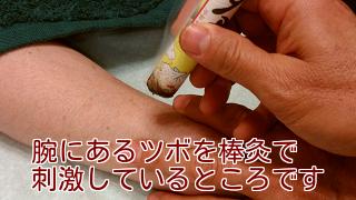 腕にあるツボを棒灸で刺激しているところです