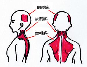 緊張型頭痛の起こる筋肉