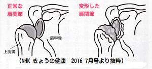 変形性肩関節症