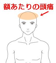 額あたりの頭痛