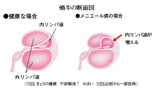 蝸牛の断面図