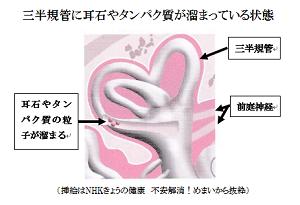 三半規管に耳石やタンパク質が溜まっている状態