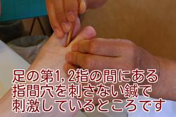 足の第1,2指の間にある指間穴を刺さない鍼で刺激しているところです