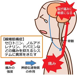 線維筋痛症はセロトニン、ノルアドレナリン、ドパミンなどの痛みを抑えるシステムに異常をきたす