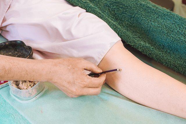 手足にお灸施術