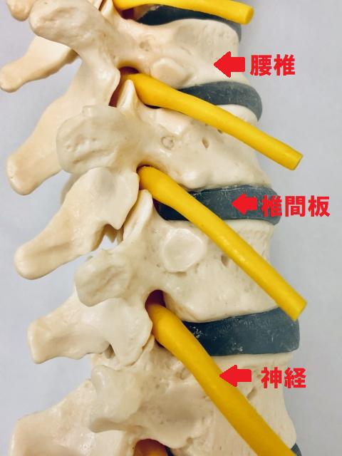 腰椎、椎間板、神経