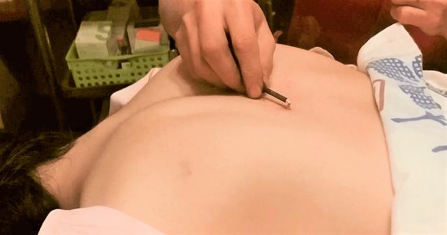 背中にお灸施術をしているところ
