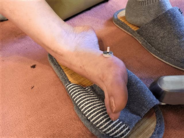 太白(たいはく)のツボへのお灸